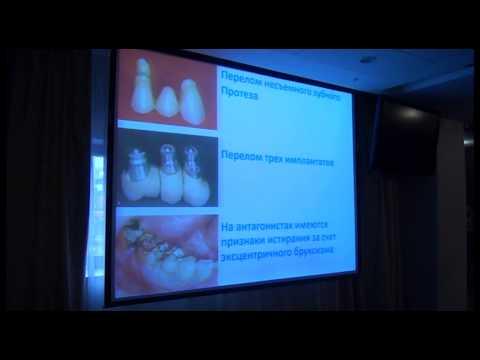 Бруксизм, как фактор риска №1 для стоматологического лечения. Бояться или управлять