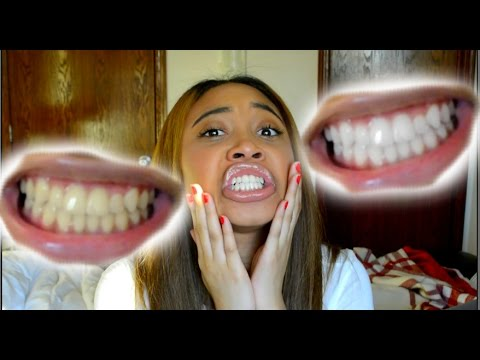 how to whiten teeth in 5 minutes works 100