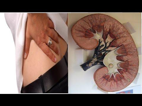 Prostatite che per il trattamento di stadio precoce