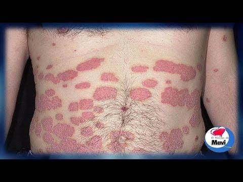 La salud el tratamiento de la psoriasis