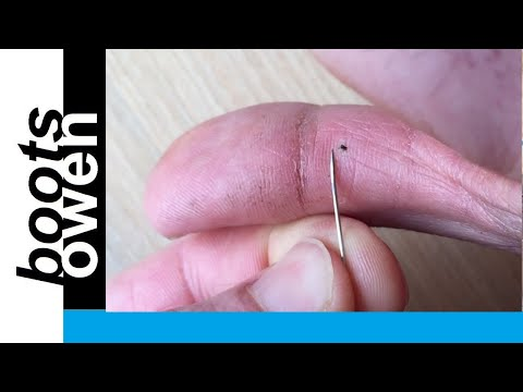 , title : 'Quick and easy way to remove a stubborn thorn or splinter in your finger