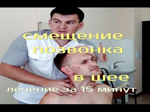Лечение острой боли в шее за 15 мин. Мануальная терапия. Остеохондроз шейного отдела