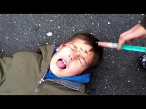 Qigong in Typ 1 Diabetes