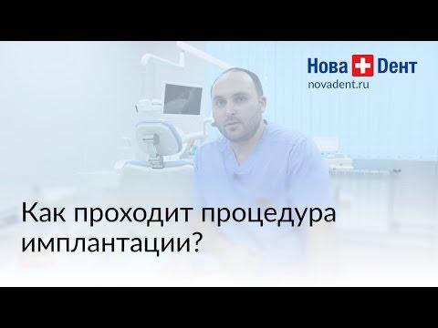 Как происходит имплантация?