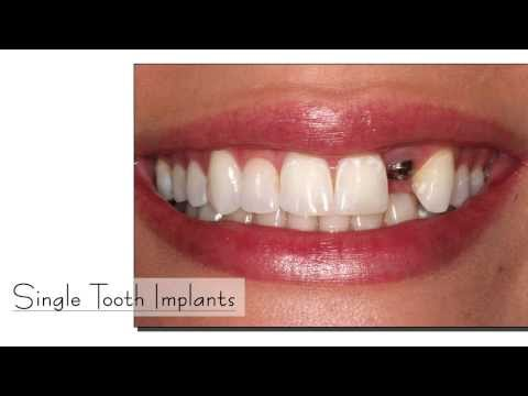 Thangams Dental Implant Center In Tamil Nadu India
