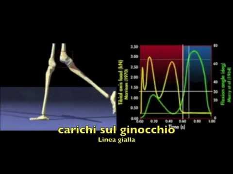 Analisi della deambulazione : carichi sul ginocchio