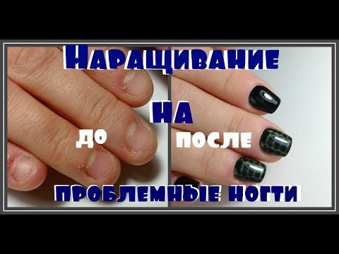 Die Homöopathie von gribkow der Nägel