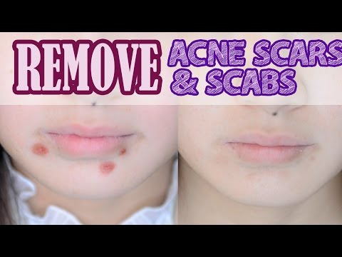 Video How to: Remove Acne Scars & Scabs