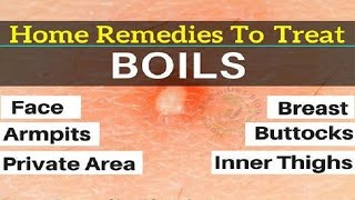 Home Remedies for Boils on Private Area.