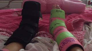 Life hacks for casts, boots and crutches