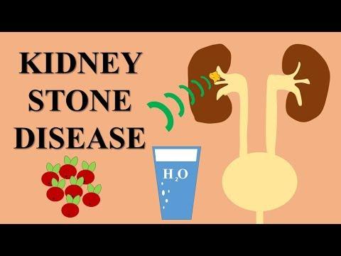 Vírusos artrózis kezelése