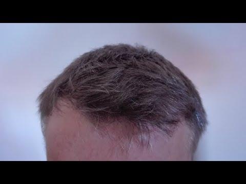 Leczenie ciężkiej wypadanie włosów