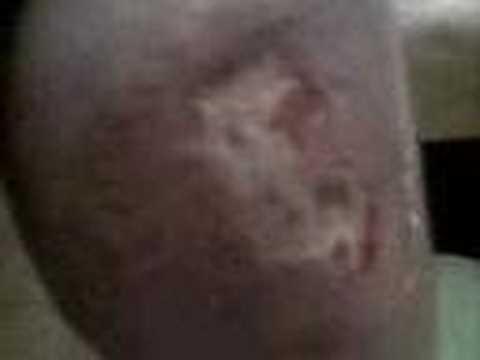 Atopitchesky la dermatite chez le bouledogue français le traitement
