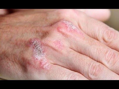 Objawem atopowego zapalenia skóry u niemowląt