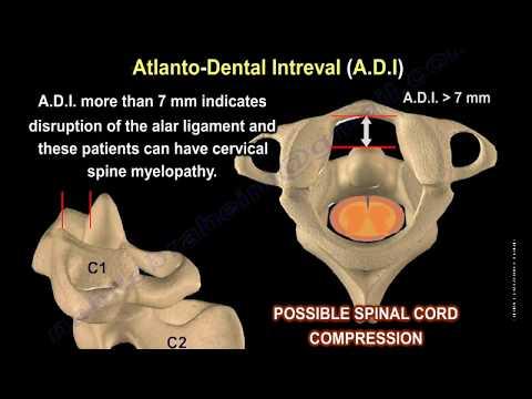 Röntgenstrahlen des Schultergelenkes Ladungs