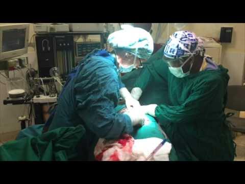 ครีมสำหรับการรักษาเส้นเลือดขอดของขา