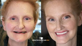 Youtube Video Mother's Day Extreme Smile Makeover - Dental Veneers by Brighter Image Lab For Daughter's Wedding