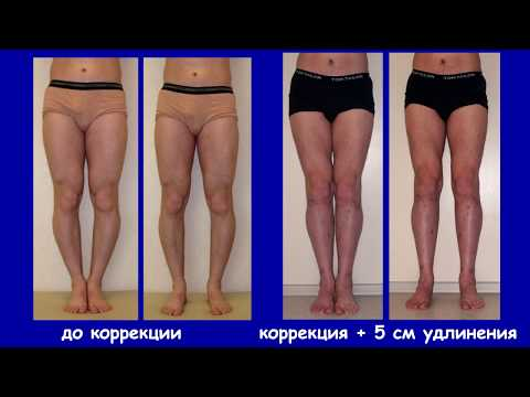 Исправление кривизны и удлинение ног. Д-р. Артемьев А.А.