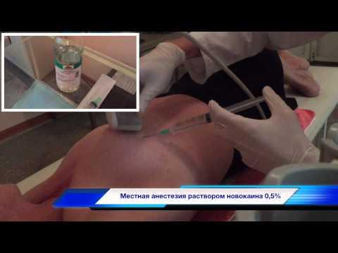 Пистолетная биопсия опухолей молочных желез