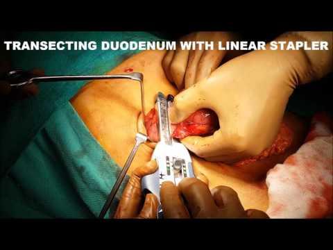 Radykalna resekcja dystalnej części żołądka metodą laparoskopową z minilaparotomią