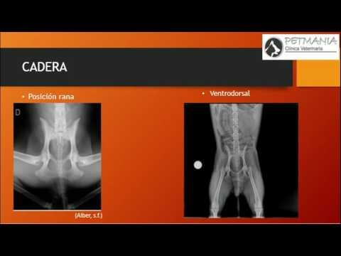Periartritis del tobillo lo que es y cómo tratar