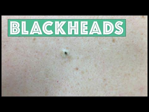 Just Blackheads!