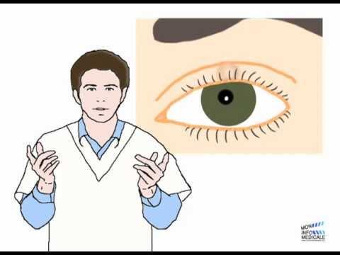 La crème des rides autour des yeux de 30 années