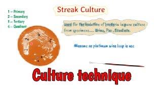 Culture Methods Technique || Microbiology Culture Techniques