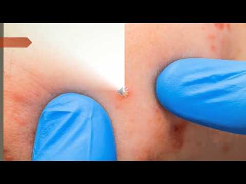 Las 8 enfermedades mas comunes de la piel.
