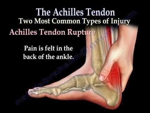 Ścięgno Achillesa - przerwanie, rozdarcie, zapalenie