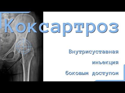 Продлеваем жизнь суставу: Внутрисуставное введение гиалуроновой кислоты в тазобедренный сустав