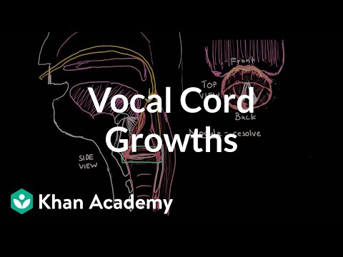 right vocal cord