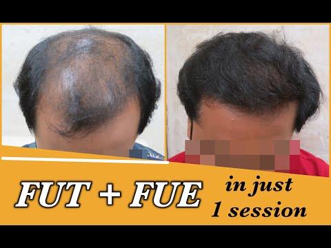 Hair Transplant in Delhi | Dr Shail Gupta