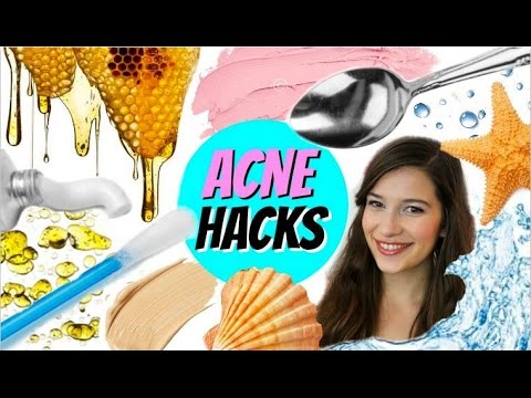 Video EXTREME ACNE CURE HACKS!!!