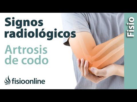 Fisioterapia de la articulación de la cadera