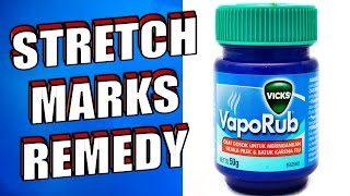 vicks vapor rub for stretch marks review - मुफ्त