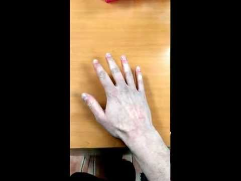 Video An Example of Raynaud's Disease