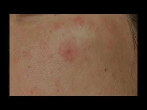 Отбеливание кожи лица после прыщей