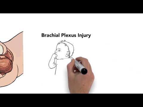 Image for Brachial Plexus post
