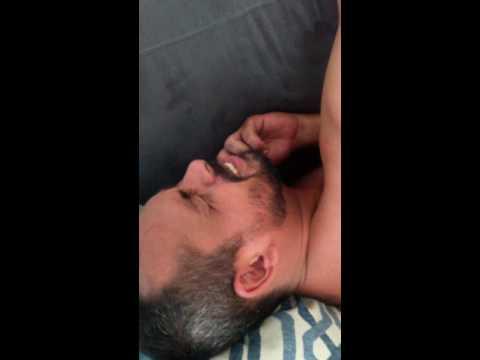 Focos de fibrose na próstata