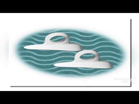 Бандажи шины для лечения hallux valgus