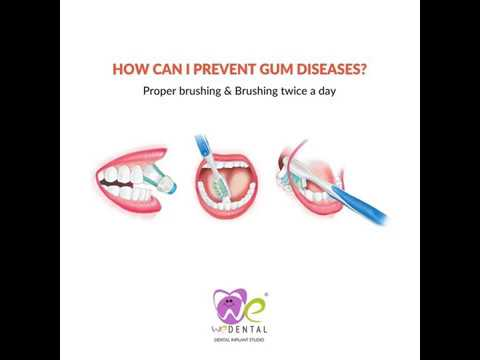 preventing  Gum diseases ideas by best dental hospital in coimbatore