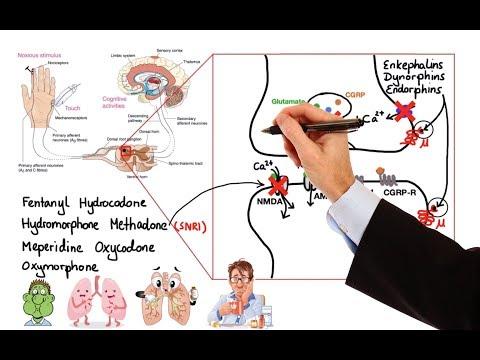 Come sciogliere le calcificazioni nella ghiandola prostatica