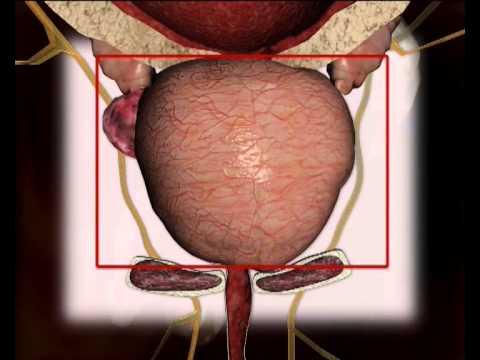 Se analýza na prostatu