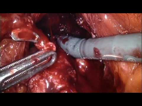 RS-RARP part 7 DVC & Apical Dissection