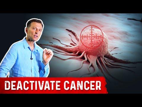Cancer colon t4