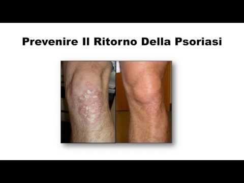 Metodi di cura di psoriasi di eczema