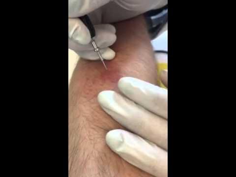 Die Behandlung der Schuppenflechte immunomoduljatorami