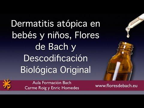 El permanganato de atopicheskogo de la dermatitis