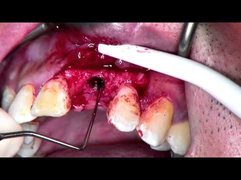 Anterior Bone Level Tapered (BLT) Implant with Bone Augmentation